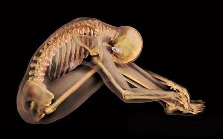 Анатомічні фотографії Олександра Ціараса, які не мають аналогів