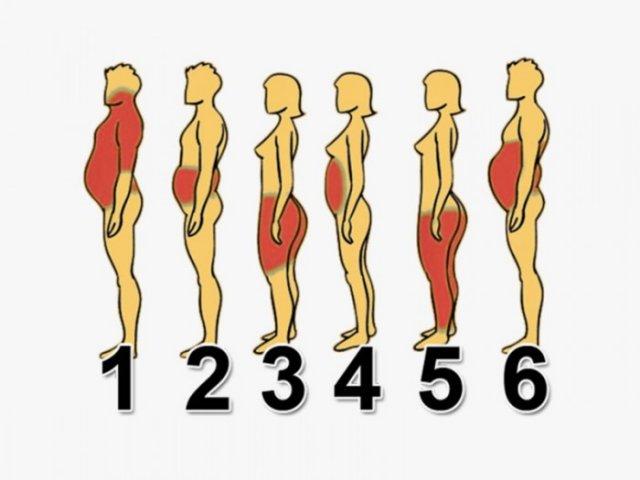 6 типів ожиріння, і як впоратися з кожним з них