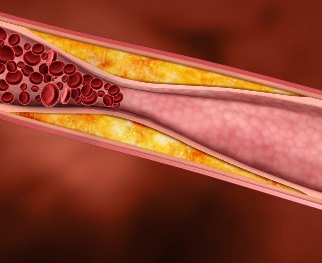 Холестерин. Найбільша афера XX століття