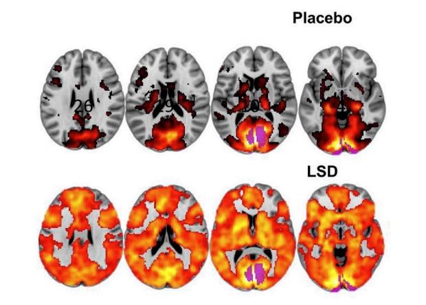 Мозок людини під ЛСД вперше розглянули в МРТ