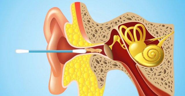 Чим шкідливими можуть бути ватяні палички для вух? (відео)