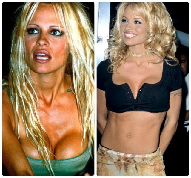 Зірки, які зменшили груди - фото до і після
