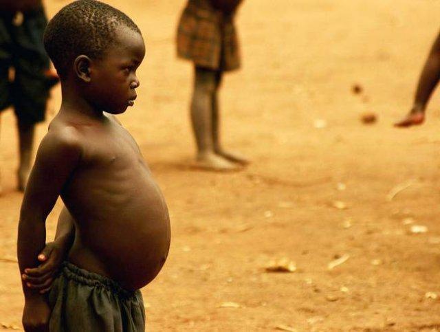 Чому від голоду пухнуть?