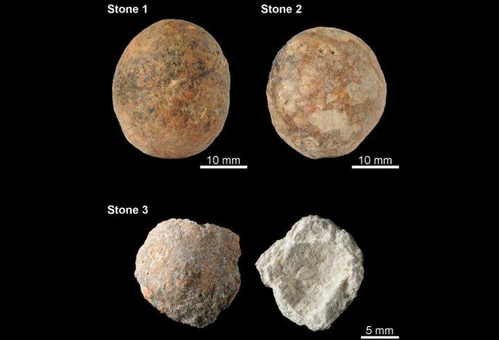 Найдавніші камені в простаті виявили у чоловіка кам'яного віку (фото)