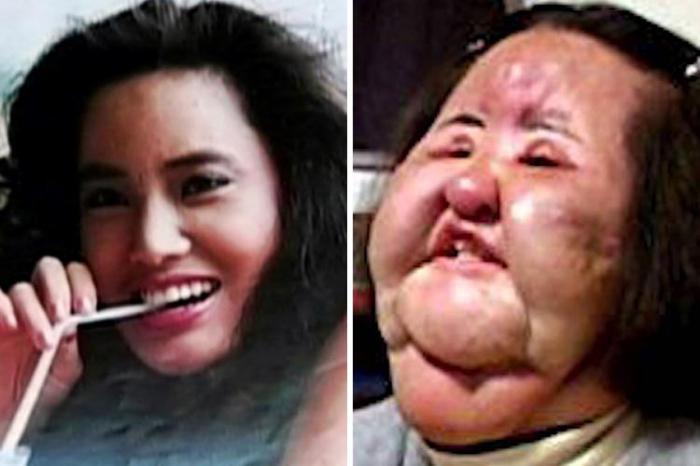 9 шокуючих пластичних операцій, що завершилися плачевно (фото)