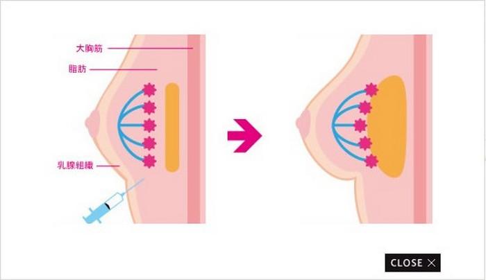 «Пластика Попелюшки»: японці навчилися збільшувати розмір грудей на добу (фото)