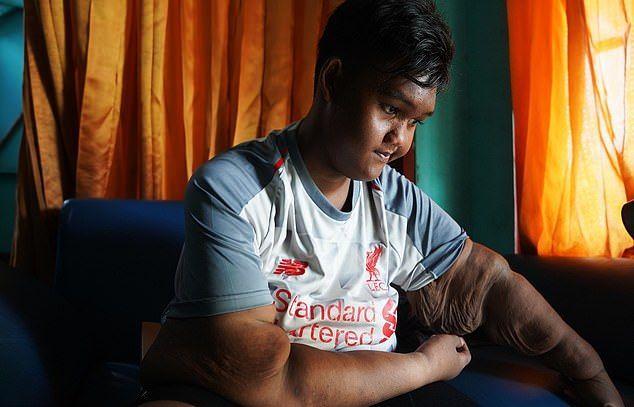 Найтовстіший хлопчик в світі втратив свій титул (фото)