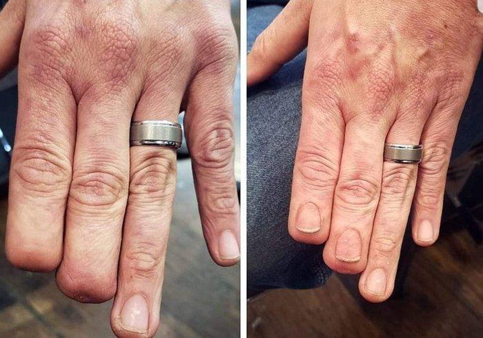 Гіперреалістичне тату нігтів художника Еріка Каталано