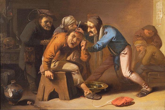 Видалення з голови каменю дурості - середньовічна традиція