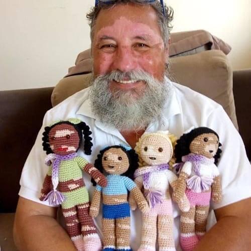 Дідусь в'яже ляльки з плямами, щоб підтримати дітей з вітіліго (фото)