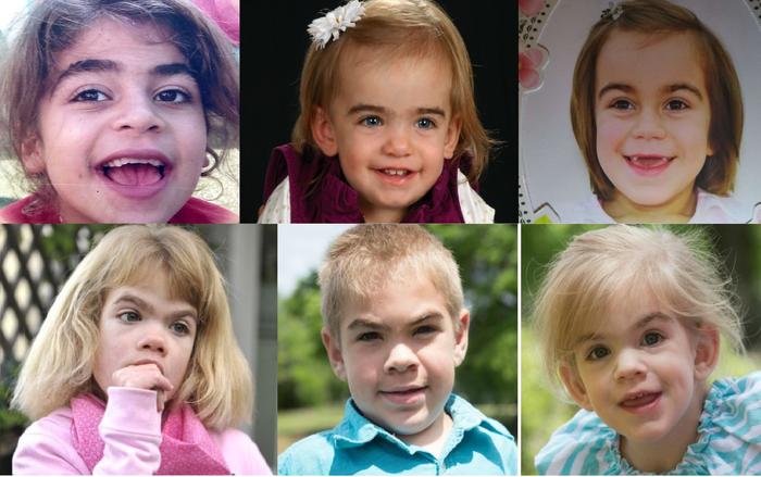 Санфіліппо: рідкісна дитяча хвороба