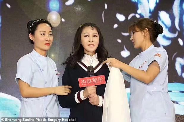Китайська дівчинка через рідкісну хворобу в 15 років виглядала як бабця, але пластична операція все виправила