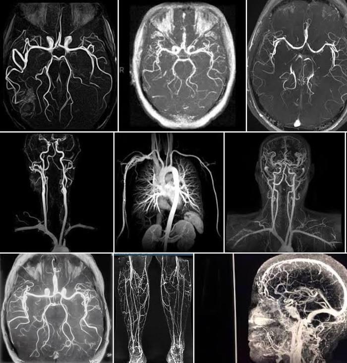 Чим відрізняються рентген, МРТ, КТ та інші види досліджень?