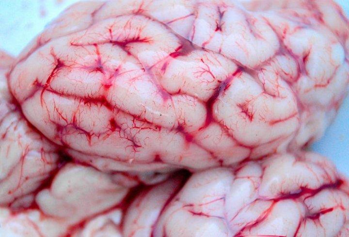 20 цікавих фактів та історій про людський мозок