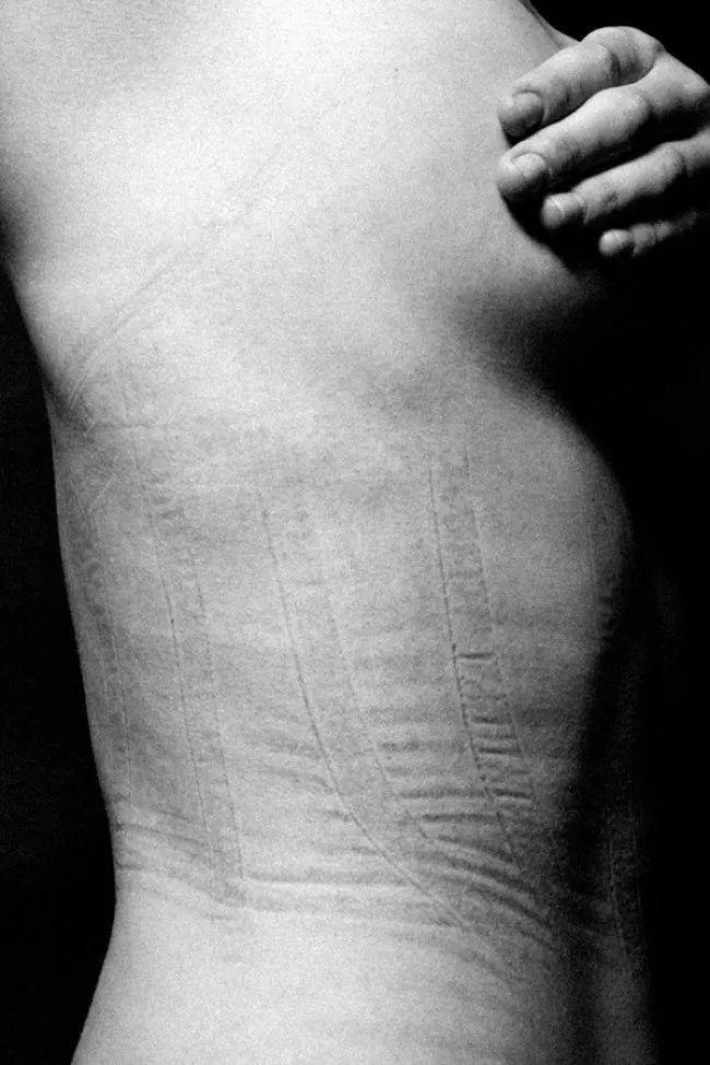 На які жертви йдуть жінки заради краси. На ці фото навіть боляче дивитися