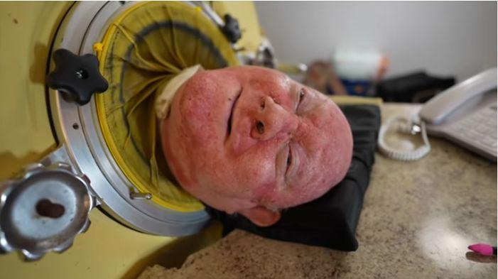 Цей чоловік вже 67 років живе в апараті штучного дихання «залізні легені» (відео)